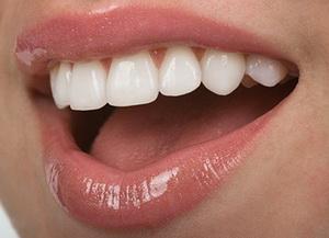 лечение десен, здоровые зубы